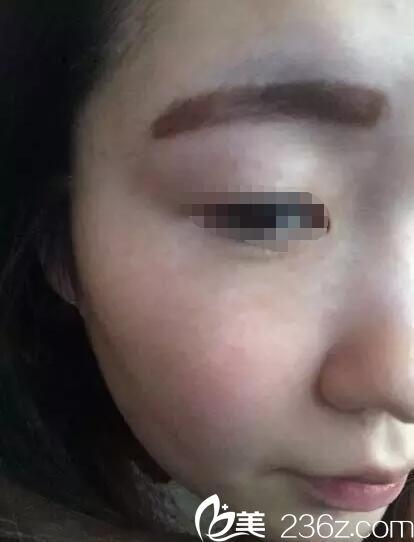 皮秒祛斑和大Q祛斑一样吗?看遗传麻子脸在泰州华美做大Q祛雀斑术后无后遗症效果还不错