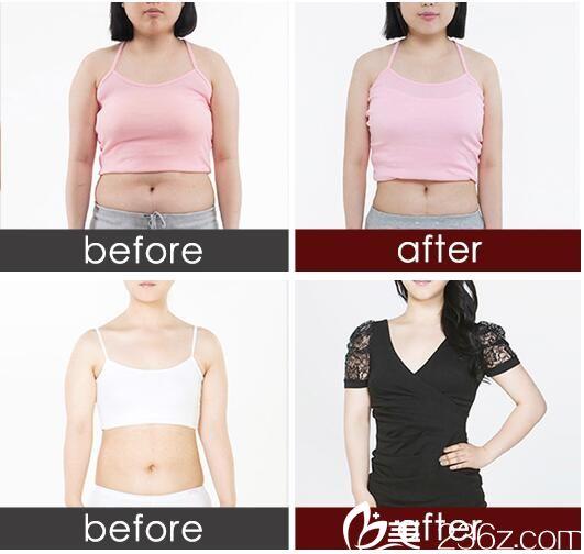 吸脂减肥对比案例