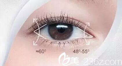 沈阳椤迪特医美预购双12优惠来了,眼综合特价6800元,为你私人定制明眸亮眼!