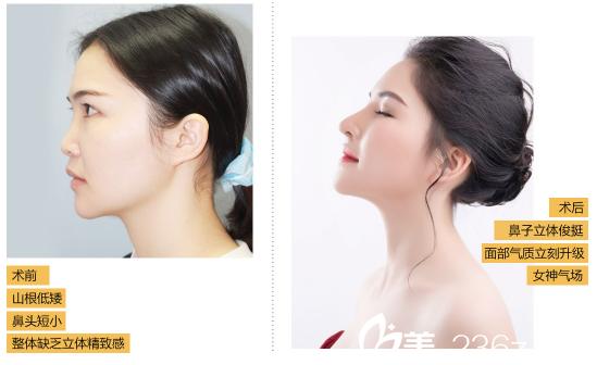 深圳希思李俊做的肋软骨隆鼻案例