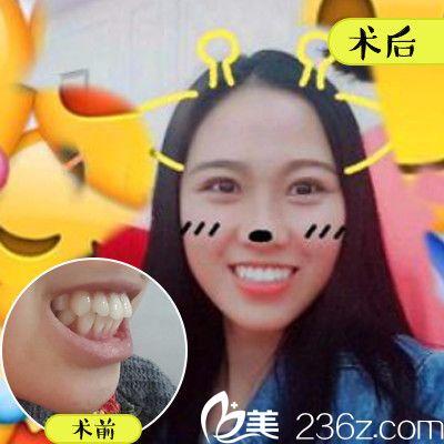深圳美莱口腔医院金属托槽牙齿矫正案例
