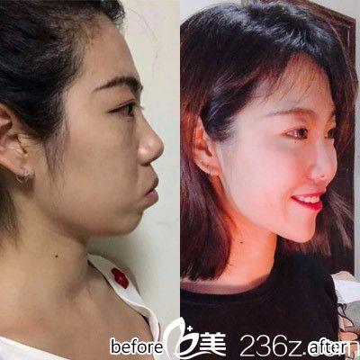 深圳美莱口腔医院陶瓷隐形牙齿矫正案例