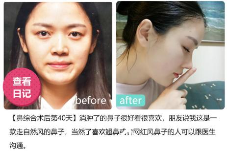 深圳美莱医院周年庆优惠整形价格表 双眼皮6300元,隆鼻子8800元,隆胸16800元