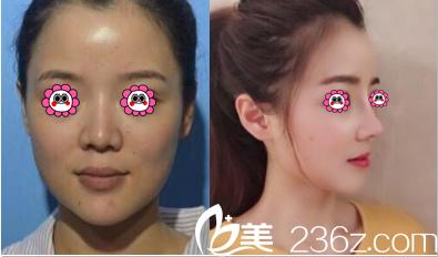 北京卓颜蕊丽原知音蕊丽肋软骨隆鼻案例