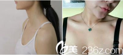 北京卓颜蕊丽原知音蕊丽自体脂肪丰胸案例