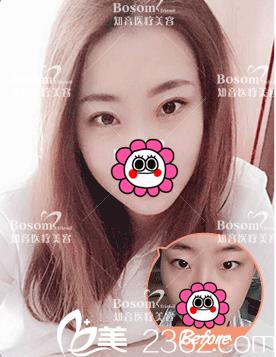 北京知音医疗美容双眼皮案例