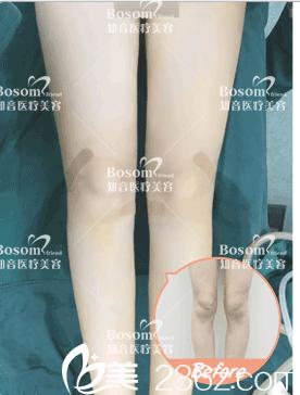 北京知音医疗美容腿部矫正案例