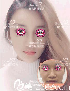 北京知音医疗美容鼻综合案例