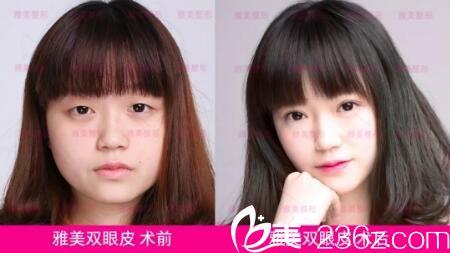 长沙雅美医疗美容好不好?双眼皮整形前后效果对比