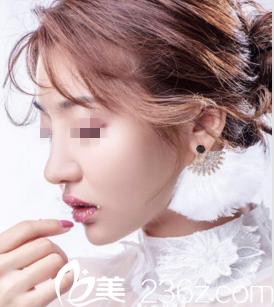 我在南宁悦星找邵菊丽专家做鼻综合手术1个月就恢复的很自然