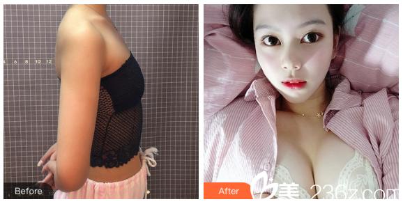 深圳美一度李晓平做的假体隆胸案例