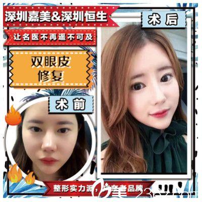 深圳嘉美医疗美容医院程明医生双眼皮修复案例