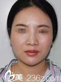 南宁艾美医疗美容医院凌宏量术前照片1