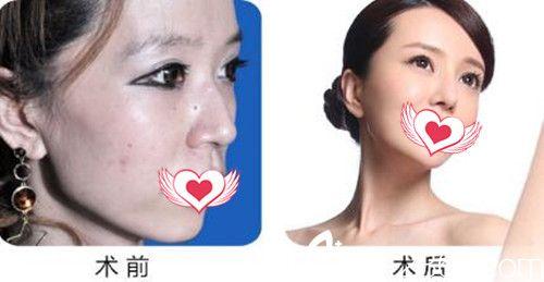 衡阳美莱温科磊隆鼻案例效果对比