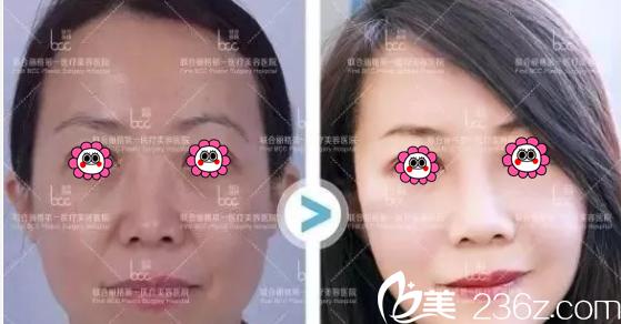 北京联合丽格微拉美复合提升术多少钱?杨大平微拉美复合提升术8800元起附案例