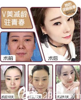 """黄寅守怎么样?看顾客做完""""V美瘦脸""""效果图"""