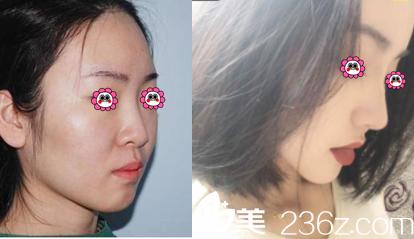 北京东方瑞丽自体软骨隆鼻多少钱?鼻部整形价格表和王军自体软骨隆鼻案例参考