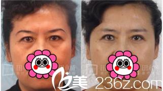 北京永成魅力医院眼袋失败修复多少钱?公布医院价格表和田永成祛眼袋案例
