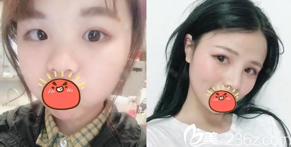 杭州时光双眼皮和隆鼻案例