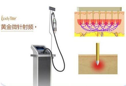 沈阳杏林黄金微针射频医疗仪器