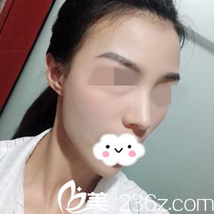湖南的李雯医生给我做了肋骨鼻综合手术,分享我术后20天的自然翘鼻照片