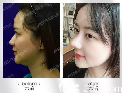 长沙爱思特芭比三体真鼻术、脂黄金综合改脸术真人前后对比效果图