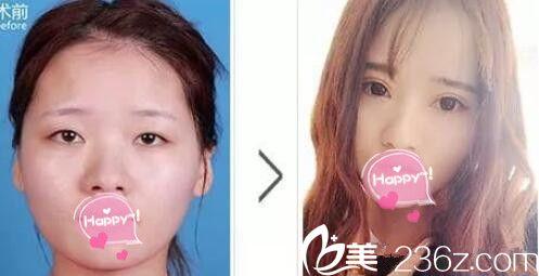 郑州东方整形双眼皮案例