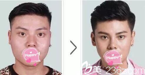 郑州东方整形眼鼻+溶脂案例展示