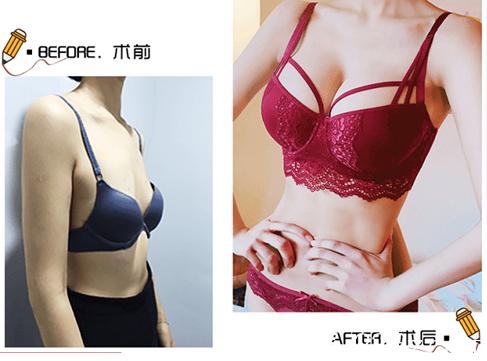 北京玲珑梵宫假体隆胸多少钱?WNS双平面动感假体隆胸价格及范元涛案例来参考