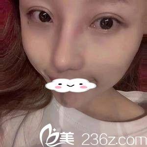 看了闺蜜的假体隆鼻后我也找韩晓东院长做了肋软骨隆鼻和全切双眼皮,分享我术后一个月的效果