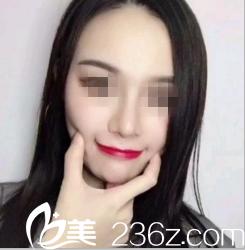 记录我在南宁邢文明做假体隆鼻2个月就拥有自然挺翘的美鼻