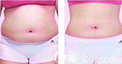利美康腰部吸脂前后变化图