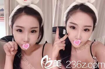 气质女生找沈阳协和整容医院杨威做了自体脂肪填充全脸+假体垫下巴后轻松拥有童颜脸!