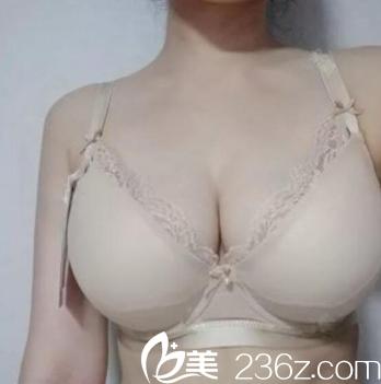 天津凤凰怡美整形美容医院正规吗?张顺庆自体脂肪+假体隆胸案例恢复图