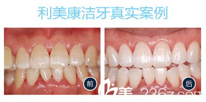 广州利美康口腔医院洁牙真实案例