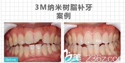 广州利美康口腔医院树脂补牙案例