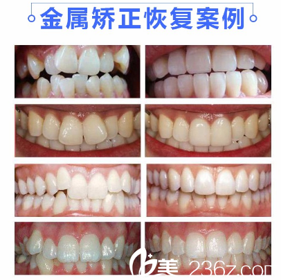 广州利美康口腔医院金属托槽牙齿矫正案例