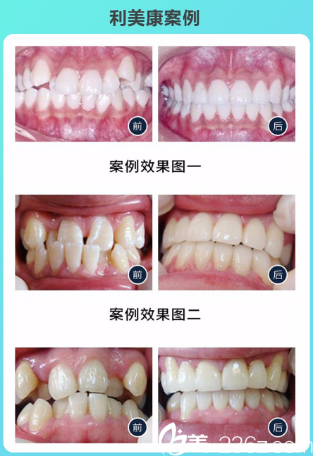 广州利美康口腔医院时代天使隐形牙齿矫正案例