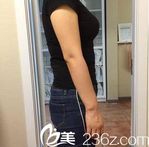 我在北京雅靓找张春彦做水动力腰腹吸脂是看闺蜜大腿吸脂效果不错价格公道