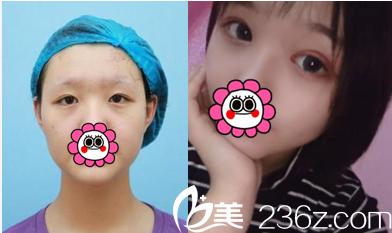 北京延世金奇龙双眼皮修复案例
