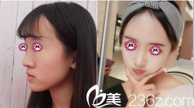 北京延世耳软骨复合隆鼻案例