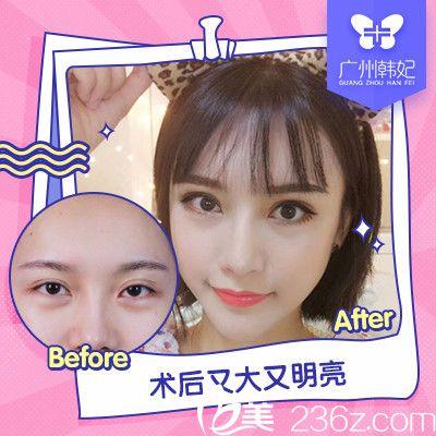 广州韩妃刘志刚做的双眼皮失败修复案例