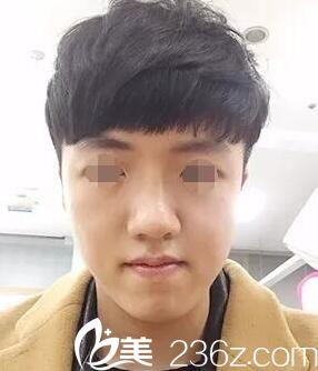 韩国原辰整形外科金玧廷术前照片1