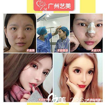 广州艺美整形医院李闯做的隆鼻案例