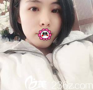 了解金奇龙双眼皮技术后我在北京延世花近三万做了切开双眼皮开眼角