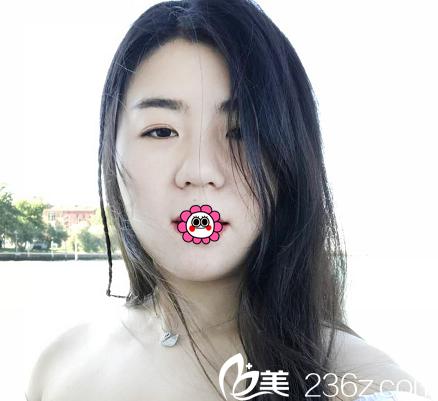 北京玲珑梵宫注射润百颜水光针案例