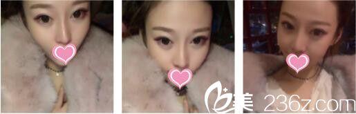上海漾颜杨济泽做的假体隆鼻真人案例效果图,来看求美者如何在28天惊艳蜕变