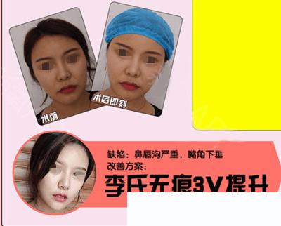 南昌红苹果李丹李氏无痕3V提升术,打造小V脸、多线组合、惊喜特惠