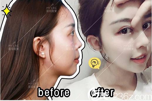 感觉这次找深圳美莱龙鹏辉做的膨体隆鼻和鼻头鼻翼缩小手术效果真不错
