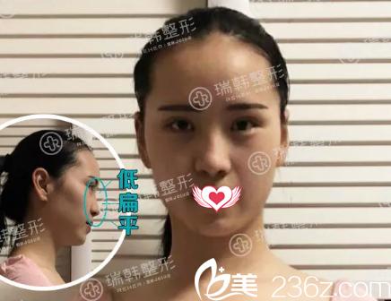 海南瑞韩医学美容医院刘申松术前照片1